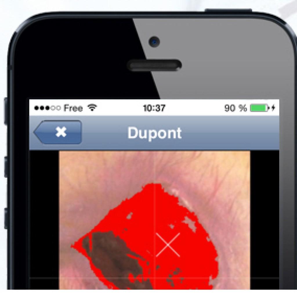 CUTAnet : logiciel de suivi de plaies